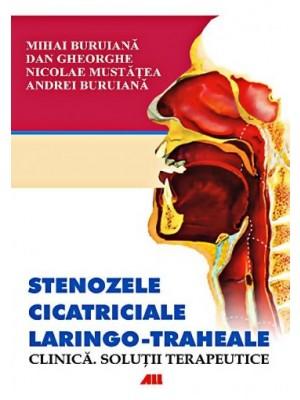 Stenozele